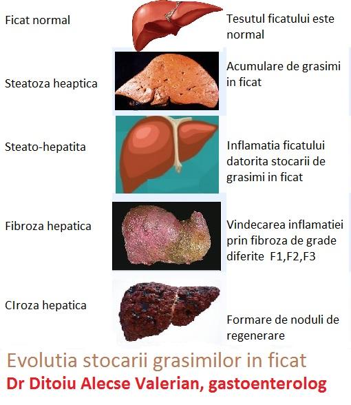 tratament steatoza hepatica