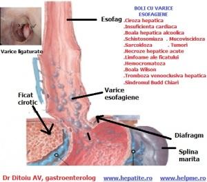 articole științifice despre varicoză